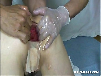 Asshole prolapsing after brutal fisting and a dildo
